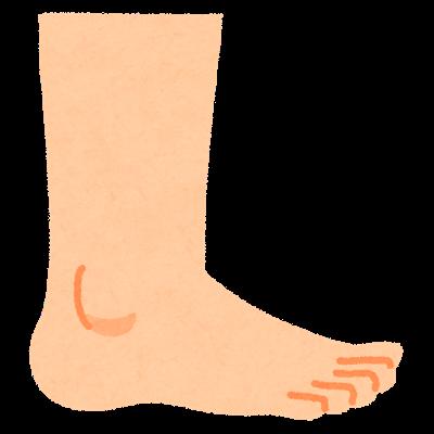 足の悩み!かかと内側の白いぷくぷくな膨らみを治した方法を紹介します!