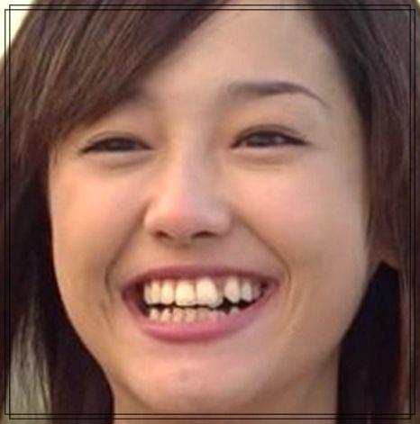 長谷川京子 歯茎