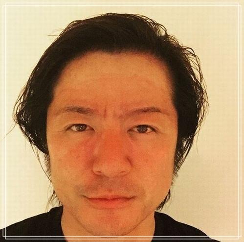 【最新画像】TERUが太って劣化しすぎ!?ほうれい線はタバコが原因?